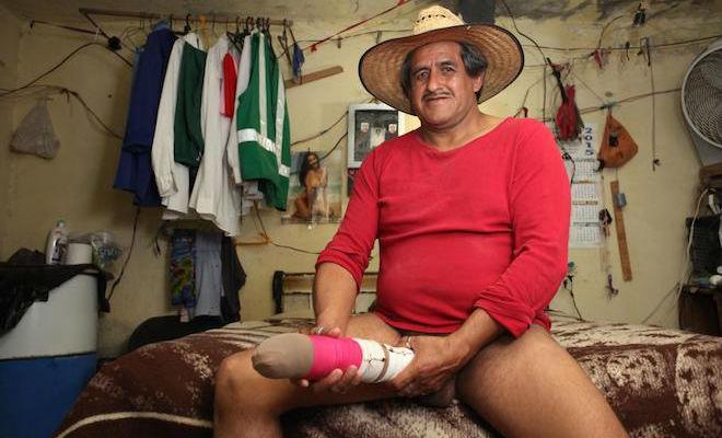 Roberto Esquivel Cabrera Worlds Largest Penis